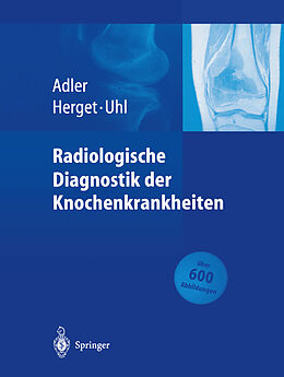 Radiologische Diagnostik der Knochenkrankheiten [Version allemande]